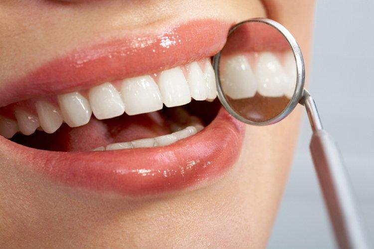 Extrêmement Implant dentaire : le choix du confort et de la qualité DP85