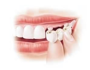 bridge dentaire qui fait mal