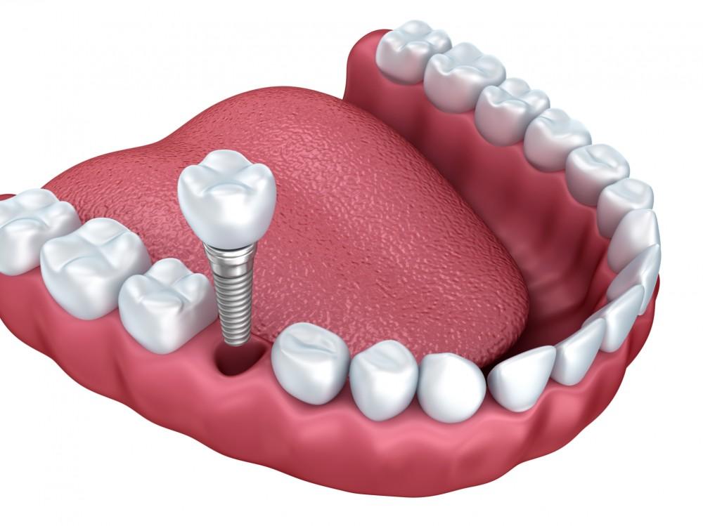 Fabuleux L'implant dentaire : présentation et coût - AY25
