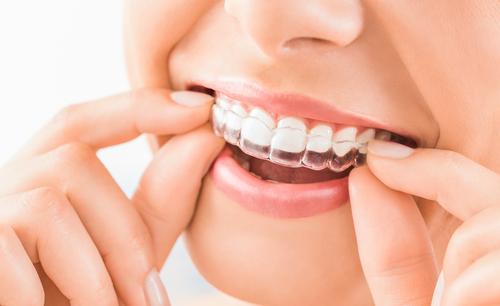 blanchiment des dents sans peroxyde risques